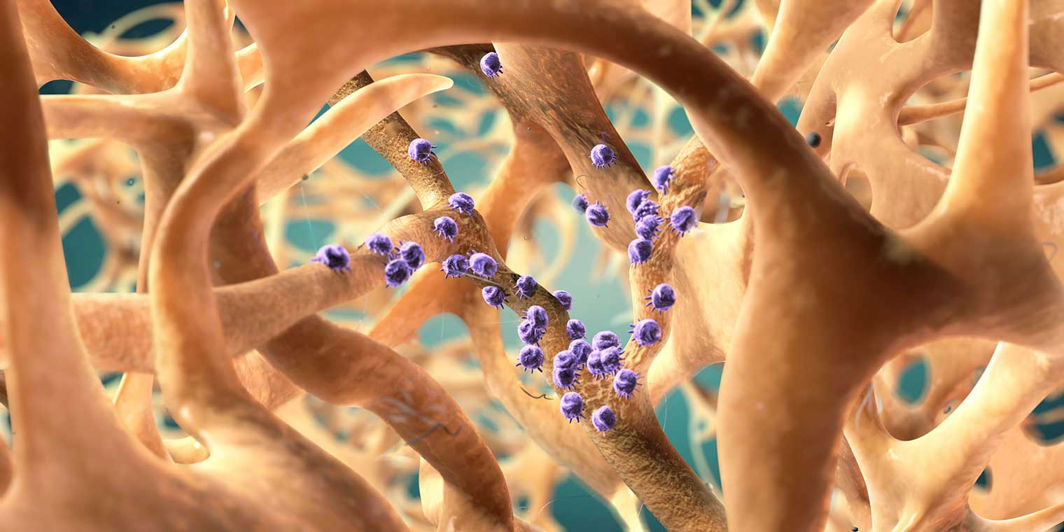 CGI-illustration-MOA Medical_Bone Osteoporosis-Craig Zuckerman