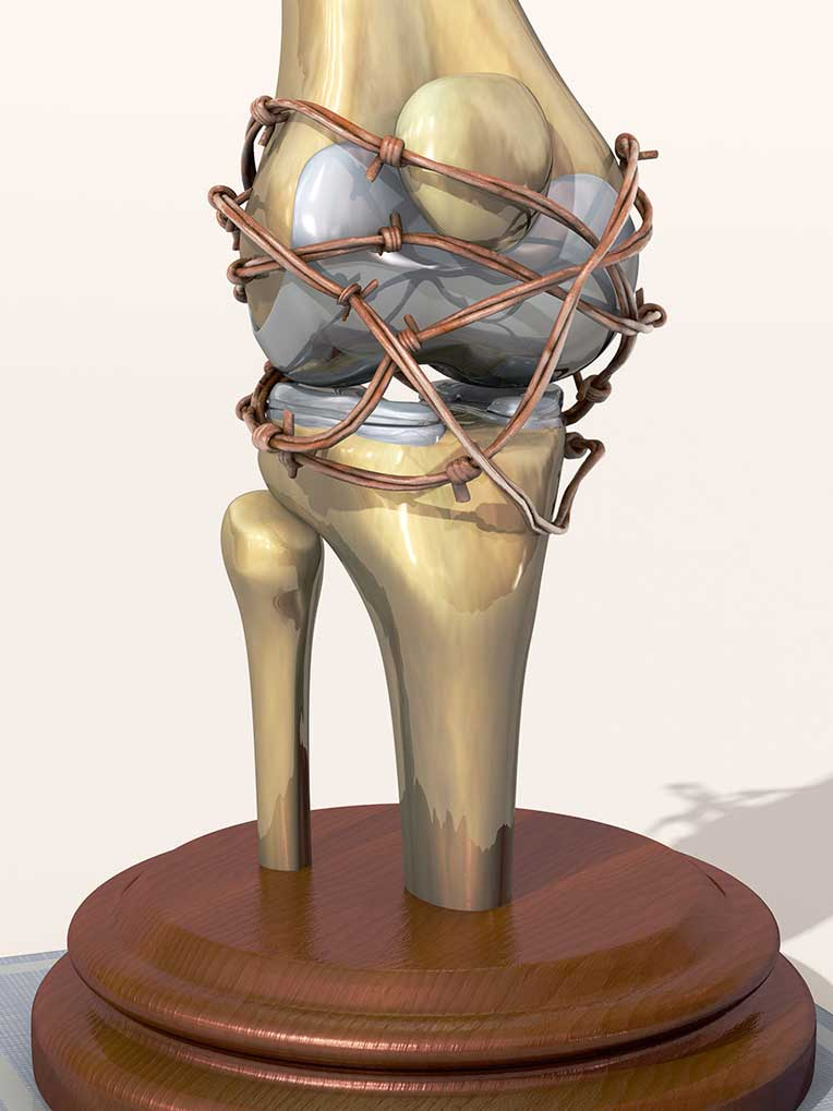 CGI-illustration-Medical_Arthritic Knee Concept-Craig Zuckerman