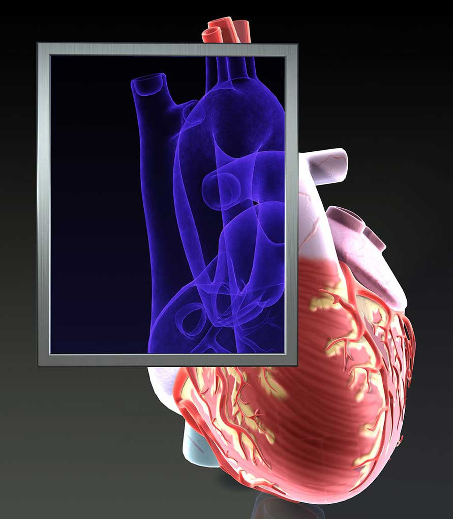CGI-illustration-Medical_Heart-X-Ray-Craig Zuckerman
