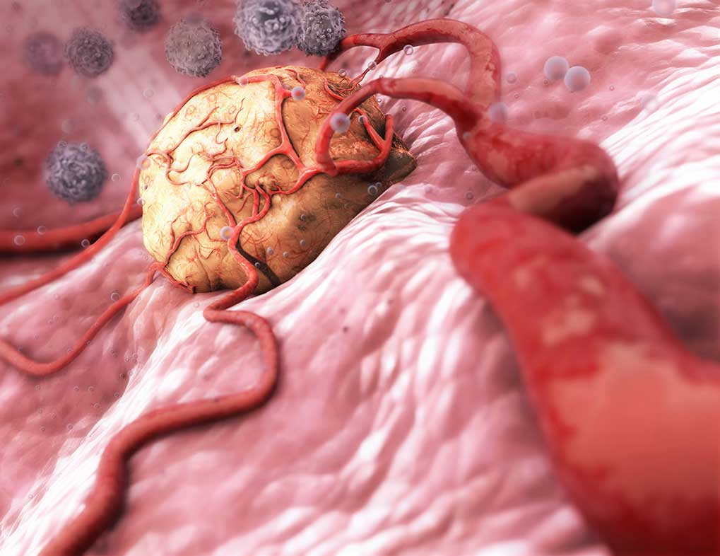 CGI-illustration-Medical_Tumor-Craig Zuckerman