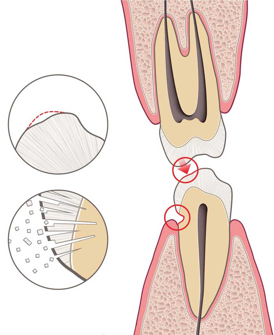 Cutaway-of-Tooth-Showing-Cavity