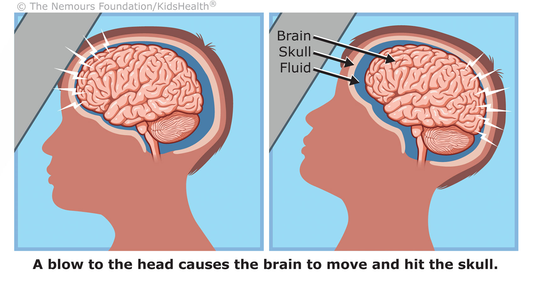 Medical-Educational-illustration-Medical_Concussion Discharge-Bill-Graham