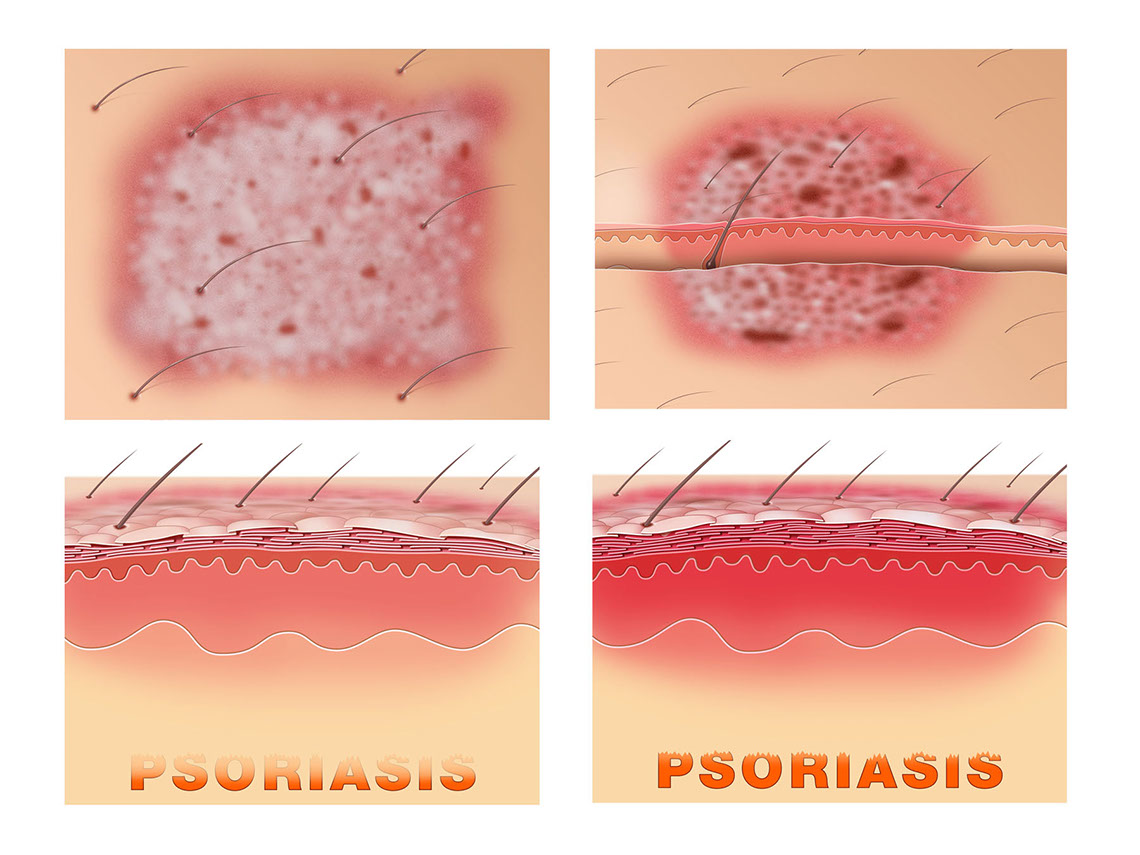 Medical-Educational-illustration-Medical_Psoriasis-Bill-Graham