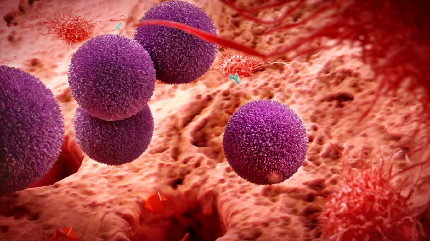 cgi-illustration-Medical_Purple puffy cells