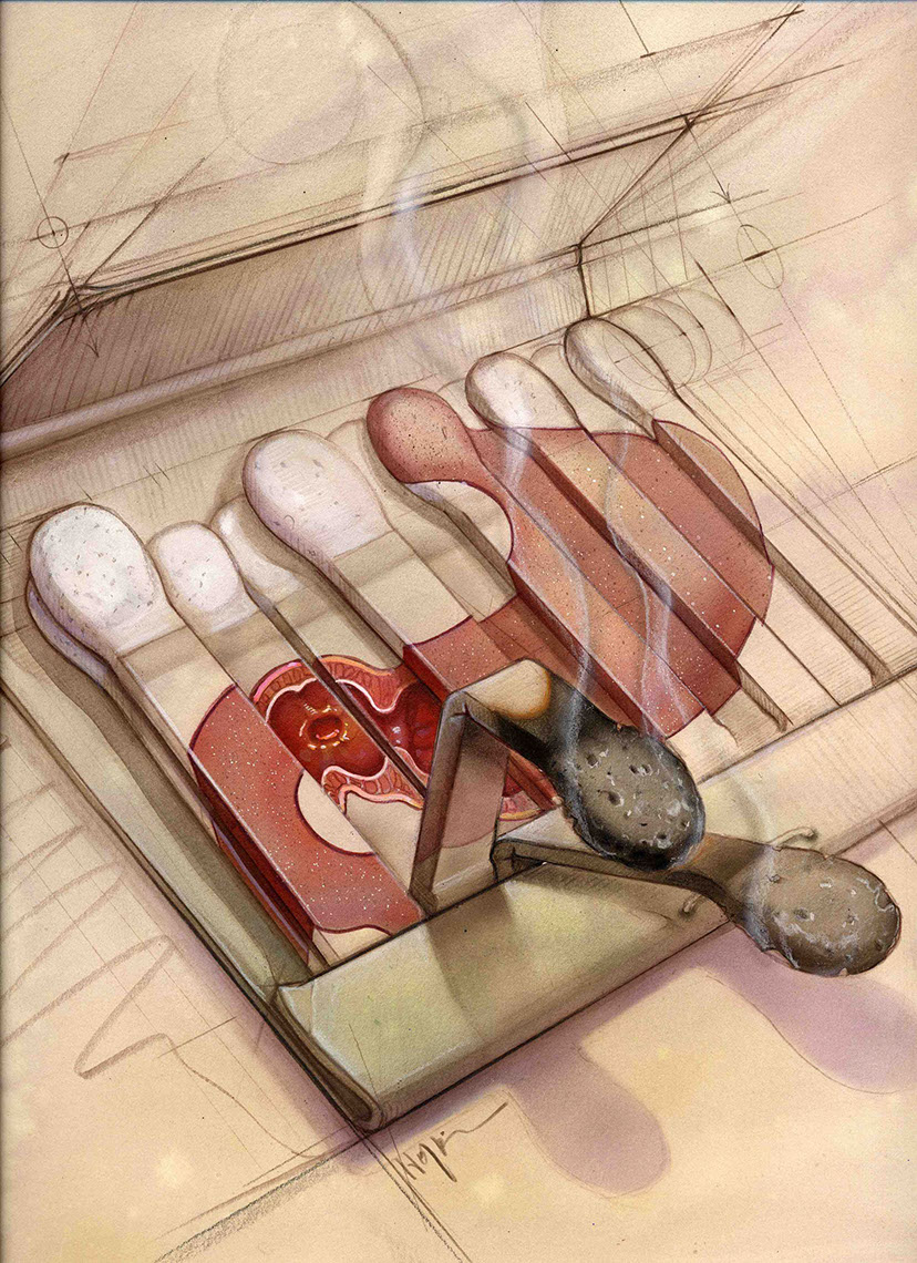 illustration-Medical_Matchbook Ulcer-Bonnie Hofkin