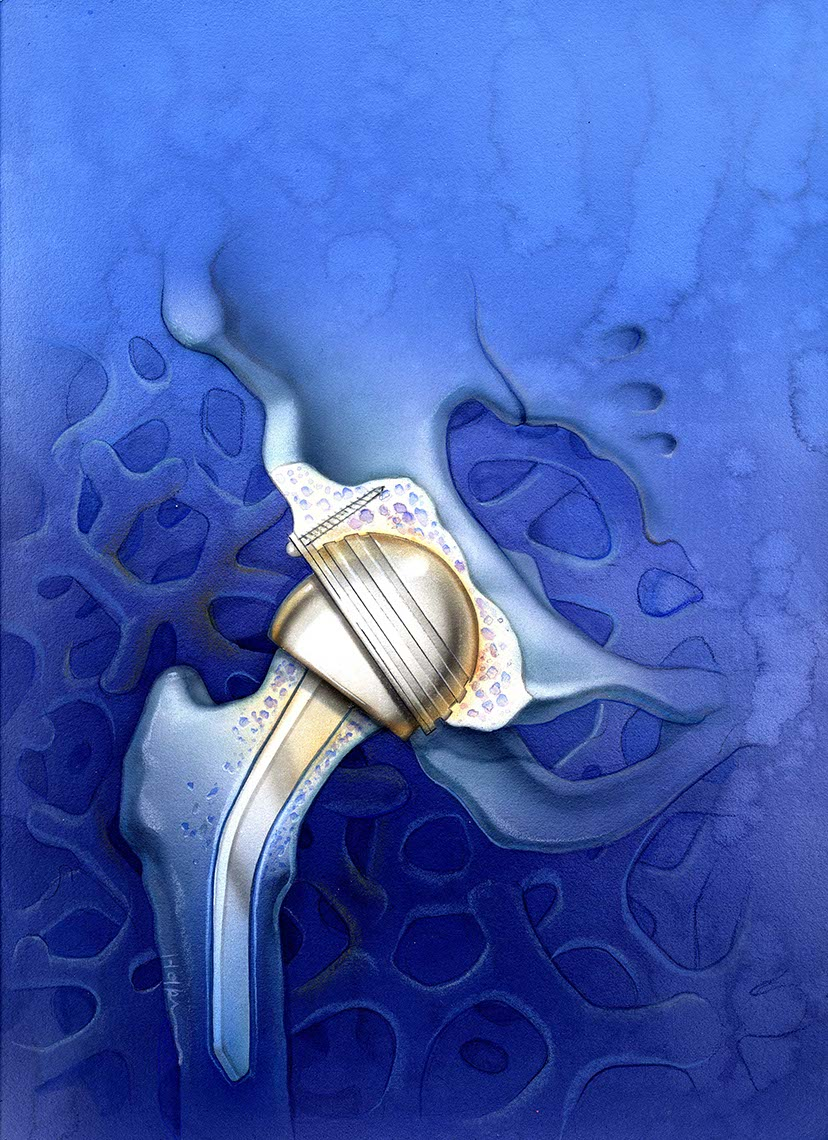illustration-hip-replacement-f-Bonnie Hofkin
